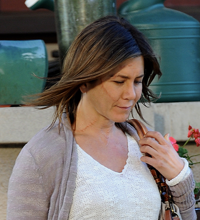 Jennifer Aniston spotted on the set of her new film 'Cake' with severe scars on her face and neck, shooting on location in Los Angeles with co-star Sam Worthington. Worthington, who kept to himself, politely asked photographers to not take pictures while